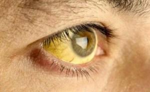 La fiebre amarilla: Cuáles son sus síntomas y cómo tratar la enfermedad